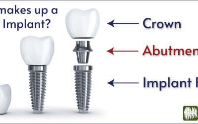 What Makes Up a Dental Implant?